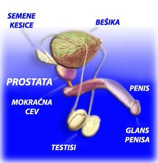 Prostatitis 4 fokos rák