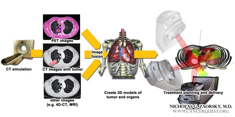 rektális rák sugárterápiás mellékhatásai)